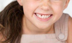 ▷ Sonhar Arrancando Dente é Mau Presságio?