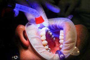 ▷ Sonhar com Dentista 【Tudo o que você precisa saber】