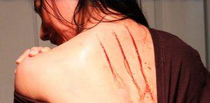 lesões e arranhões que aparecem durante a noite