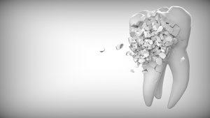 ▷ Sonhar Com Dente Esfarelando – É Mau Presságio?
