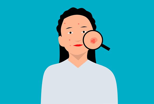 desenho png de acne no rosto