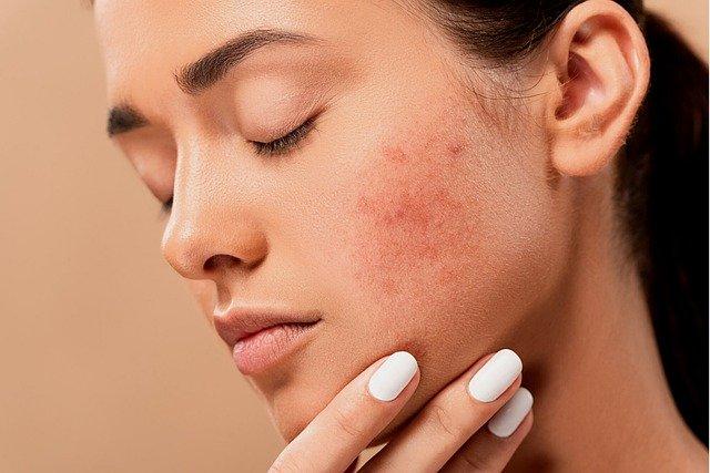 mulher jovem com acne em seu rosto
