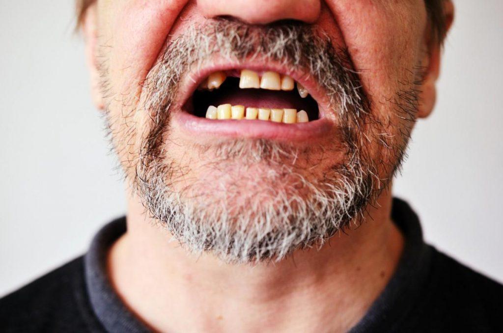 homem sem um dente com a boca aberta